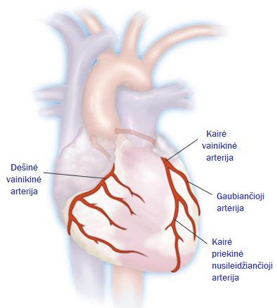 širdies plakimas geresnis sveikatos kanalas)