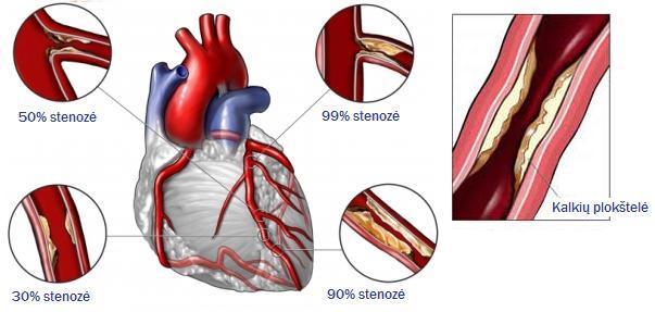 koronarinė širdies liga ir visuomenės sveikata)