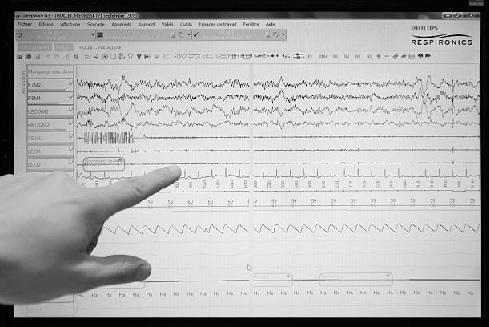 kvėpavimo aparatai nuo hipertenzijos