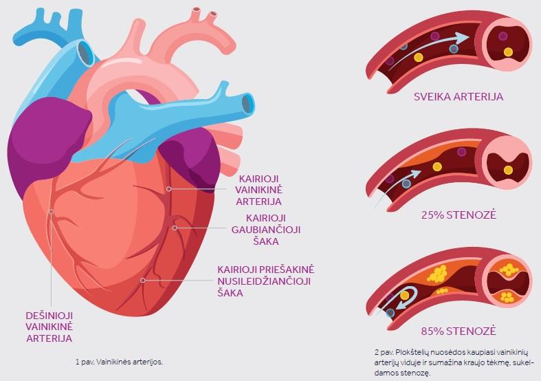 alternatyvios širdies ligų galimybės)
