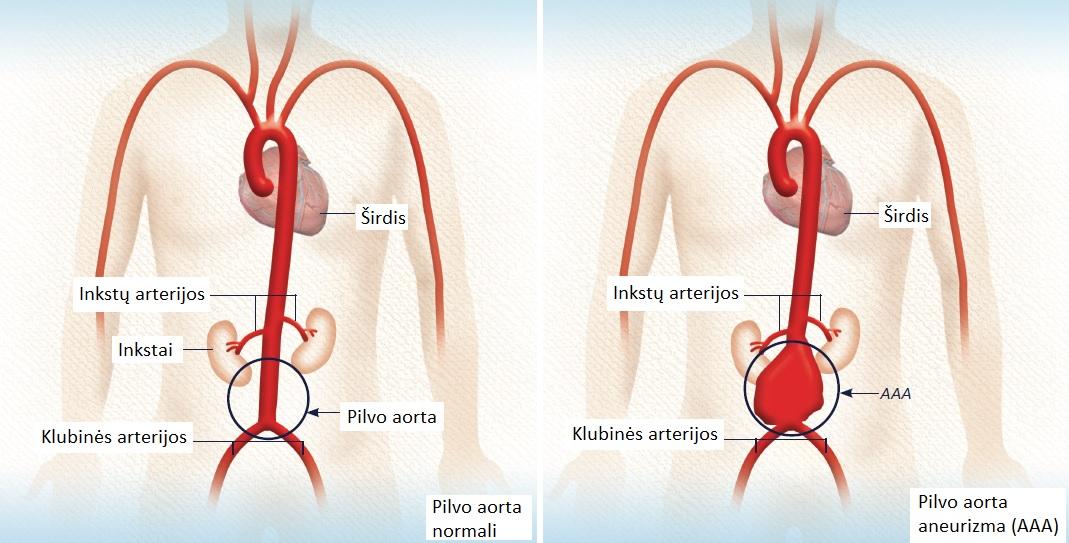 stentavimas dėl hipertenzijos)