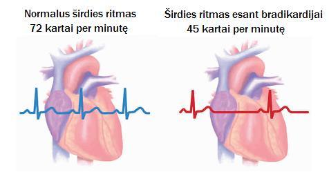 magnetai širdies sveikatai vitamino d ir širdies sveikata