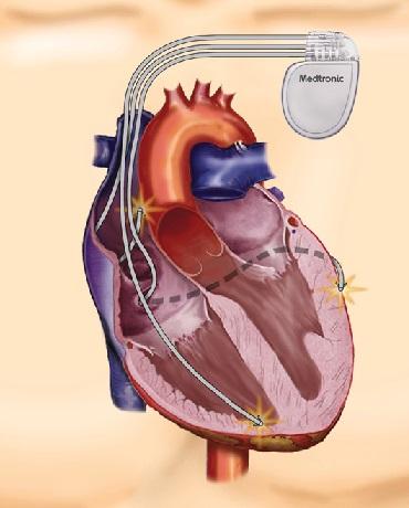 širdies raumens sveikatos aspektai