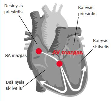 mankšta širdies sveikatos diagramai hipertenzija ir venų varikozė