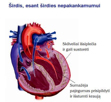 Lietuvos kardiologų draugija