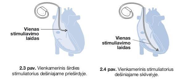širdies ritmas paveikė sveikatą)