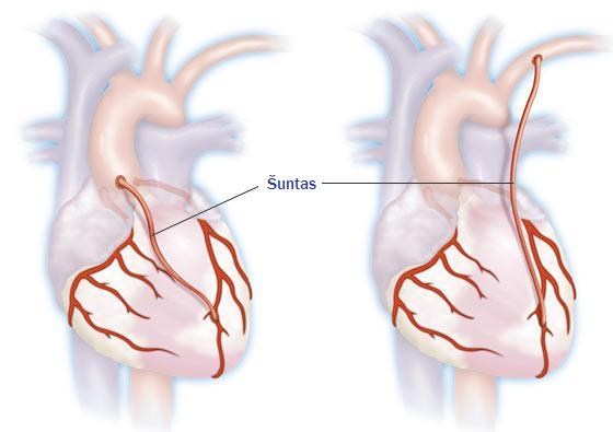 koks širdies ritmas sergant hipertenzija