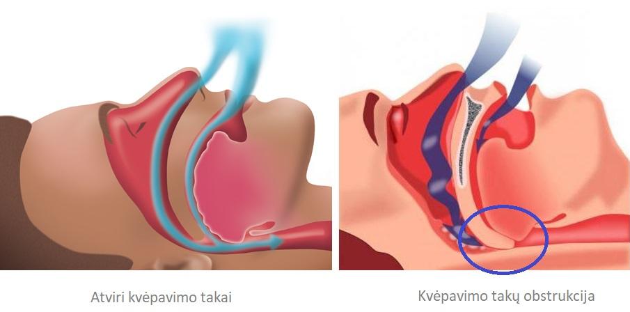Kumbhaka - kvėpavimo sulaikymas po įkvėpimo