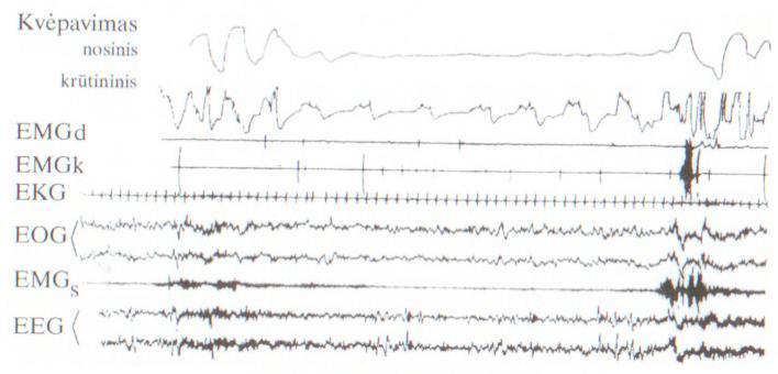 hipertenzija dusina hipotiazidinė hipertenzija