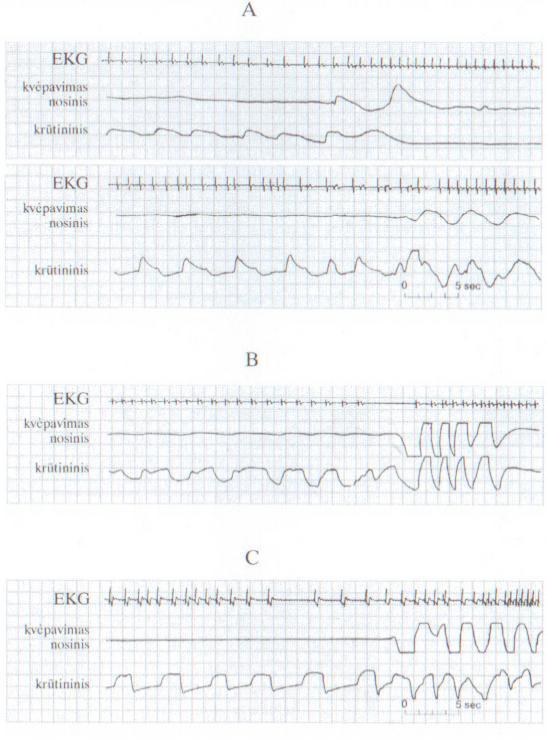hipertenzija miego sutrikimas